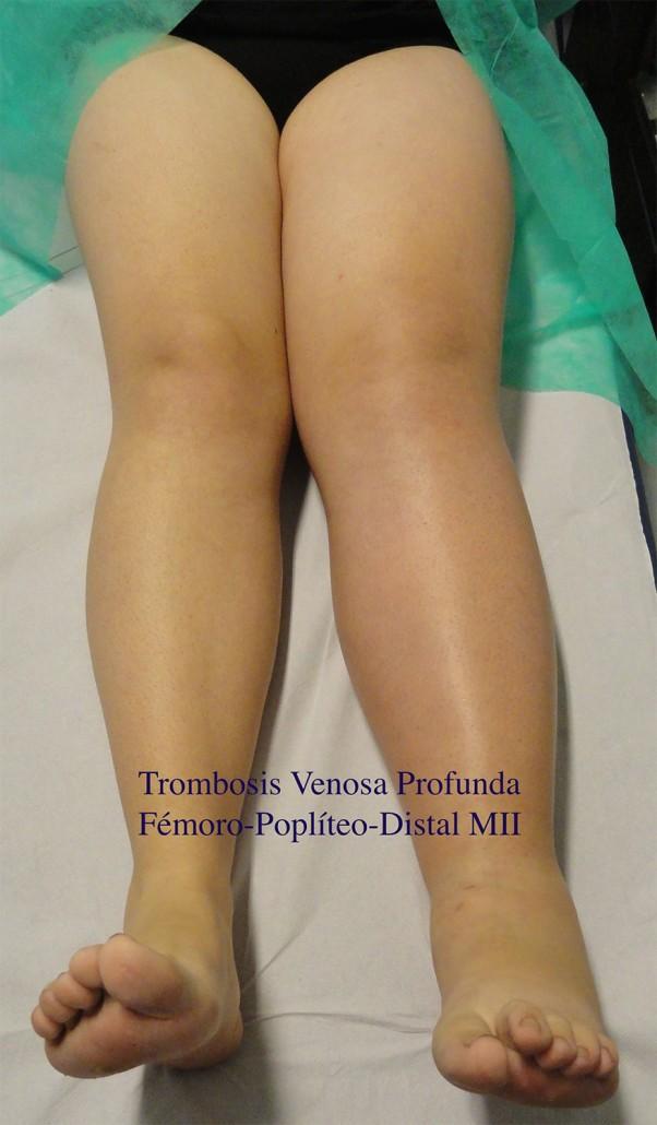 como son los trombos en las piernas